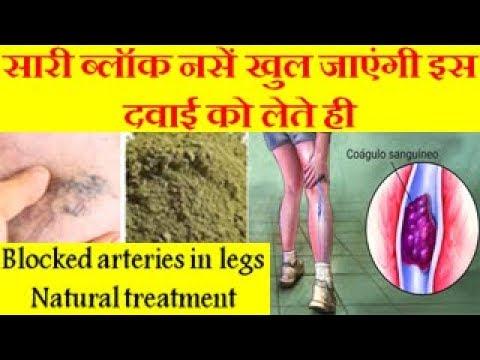 सारी ब्लॉक नसें खुल जाएंगी इस दवाई को लेते ही Blocked arteries in legs Natural treatment
