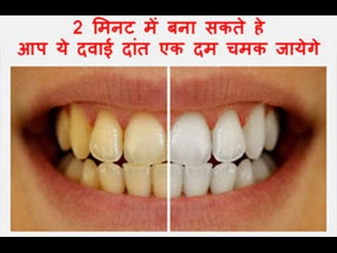 How To Whiten Your Yellow Teeth Naturally At Home in 2 minutes Tooth Whitening  Works 100%toothbrush