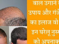 Home Remedies for Hair Loss  सताने लगा है गंजापन तो अपनाए ये उपाय