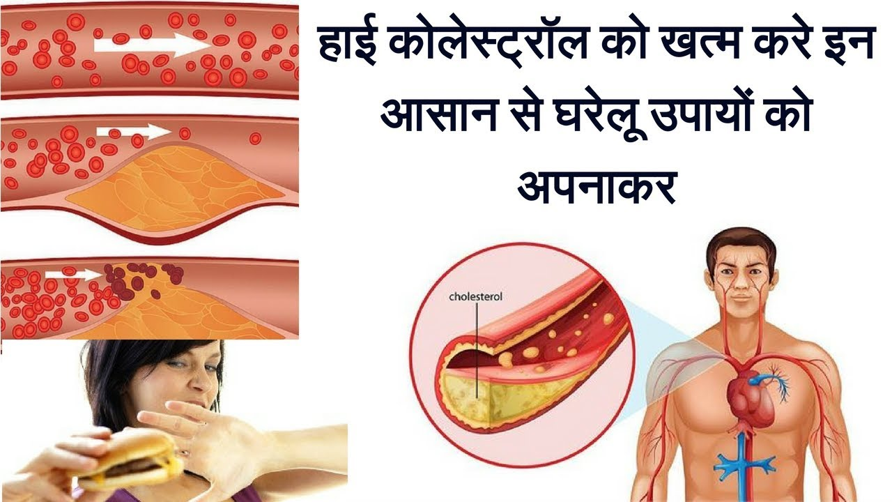 Home Remedies for High Cholesterol  | How to control cholesterol