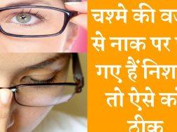 Home remedies to remove spectacle marks on nose  नाक पर भी पड़ है काले निशान तो अपनाये घरेलू उपायों