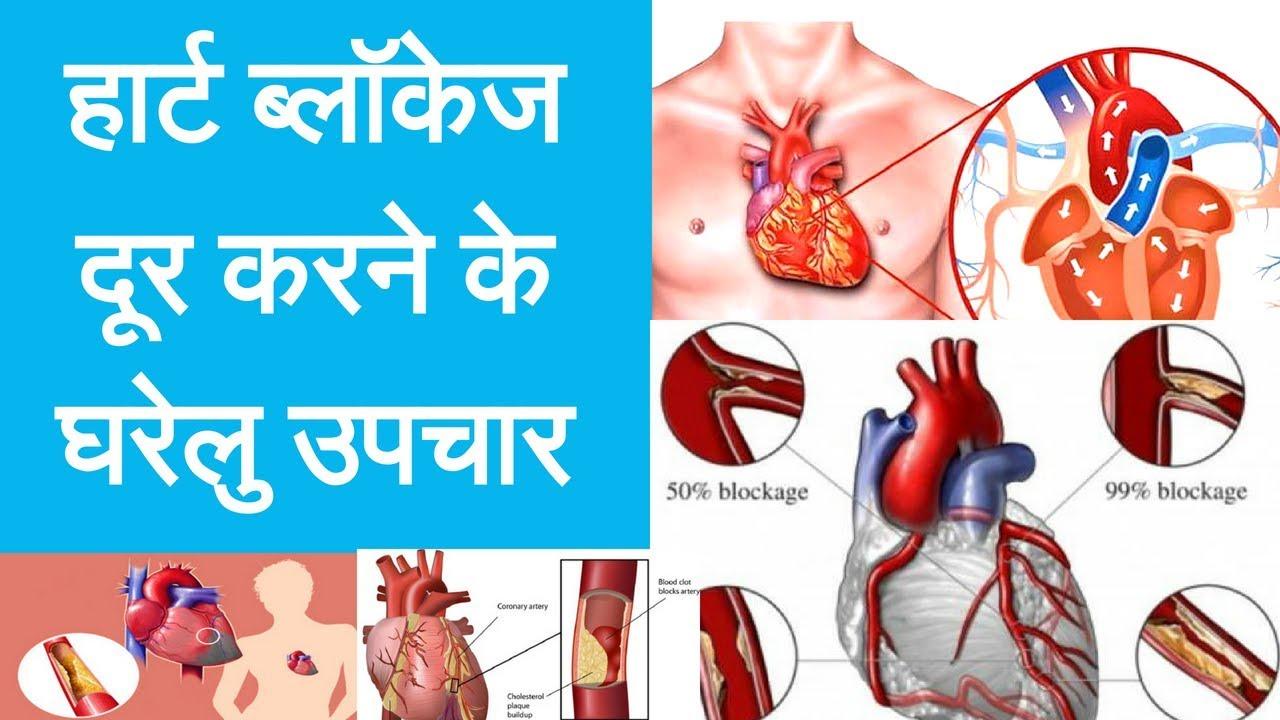 Home Remedy For Blockage In Heart – हार्ट ब्लॉकेज दूर करने के सबसे असरकारक घरेलु उपचार