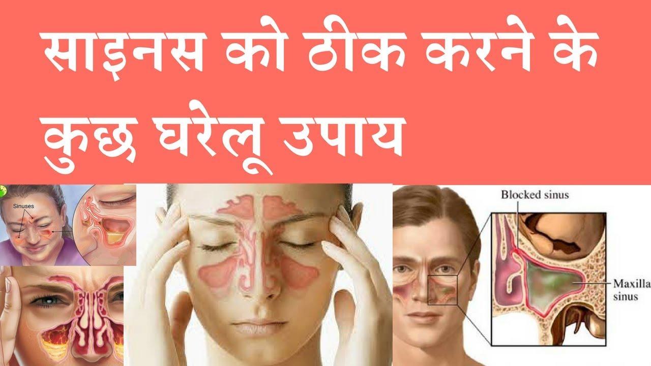 Natural Remedies for Sinus Pain साइनस ठीक करने वाला असरदार घरेलू उपाय