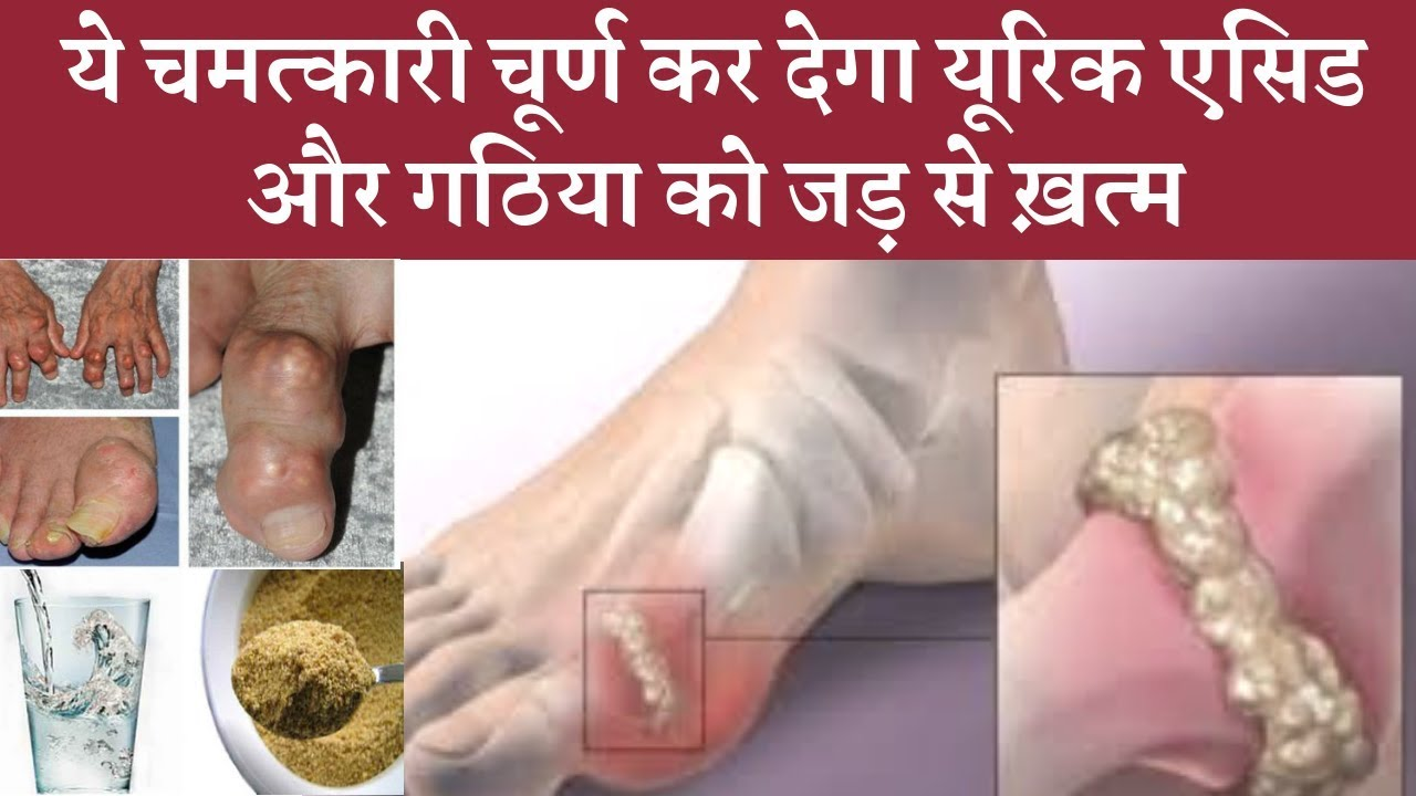Effective magical powder to control uric acid and gout problem