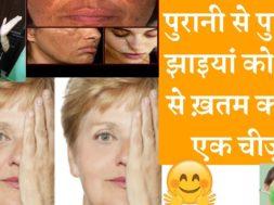 Get Rid Of Pigmentation, Dark Spots On Face | झाइयां दूर करने के सबसे असरदार घरेलू तरीका