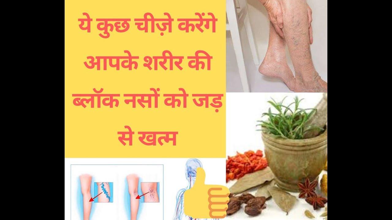 सर से पाँव तक की सारे ब्लाक नस होगा जड़ से खत्म जाने ? ??varicose veins treatments