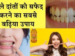 जाने दांतों का पीलापन हटाने का कारगर उपाय |  Removed the yellowing of teeth
