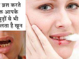 Home remedies to get relief from bleeding gums 💂 क्या आपके मसूड़ों से भी निकलता है खून