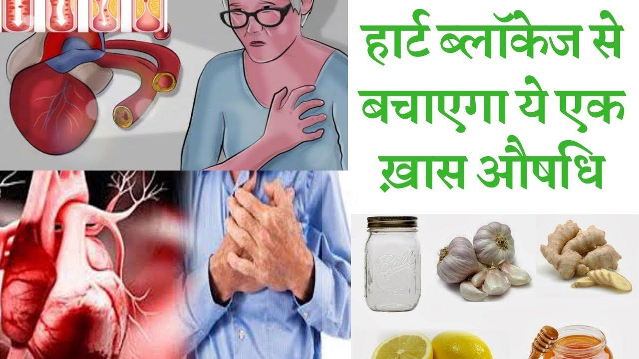 These home remedies to avoid heart blockage    आपका 1 काम नहीं होने देगा आपको  उम्रभर हार्ट ब्लॉकेज