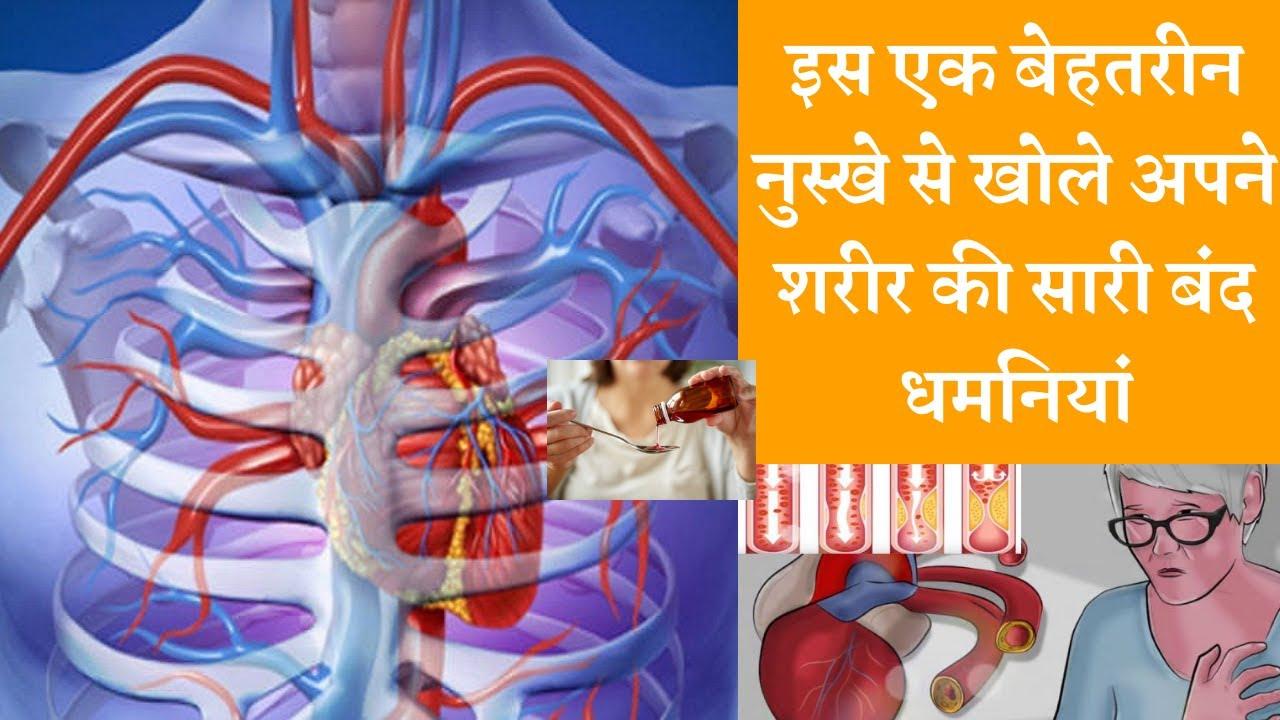 Best ayurvedic syrup to open closed arteries बंद धमनियां खोलने का पक्का नुस्खा