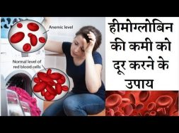 Natural ways to Increase hemoglobin count easily